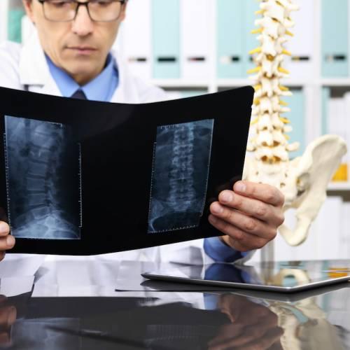 腰背痛  莫非椎間盤突出?
