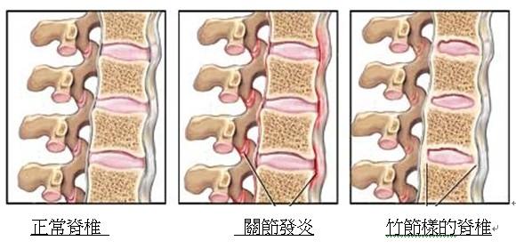 炎 強直 性 脊椎
